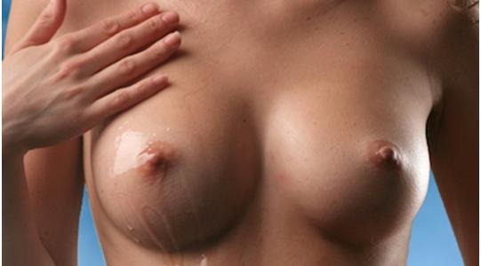Mastopexia | Cirurgia de elevação das mamas