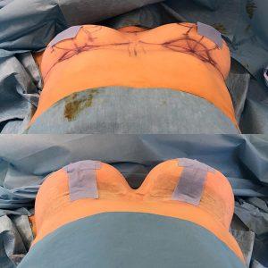 Mamoplastia de Aumento - Incisões