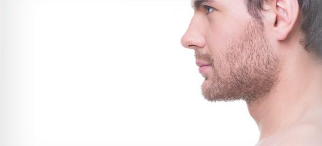 Otoplastia | cirurgia para corrigir a orelha em abano