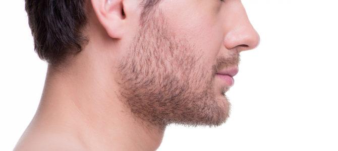 Melhorar a aparência com a otoplastia