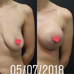 antes e depois - mamoplastia de aumento