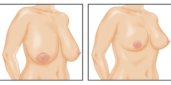 Peito a depois mammoplastika