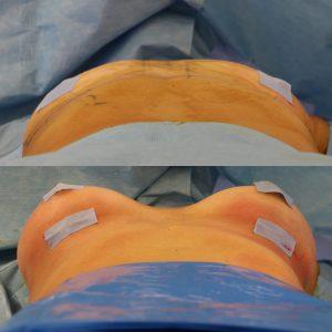 Mamoplastia de Aumento com próteses de silicone