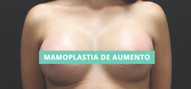 Pós-operatório da mamoplastia de aumento