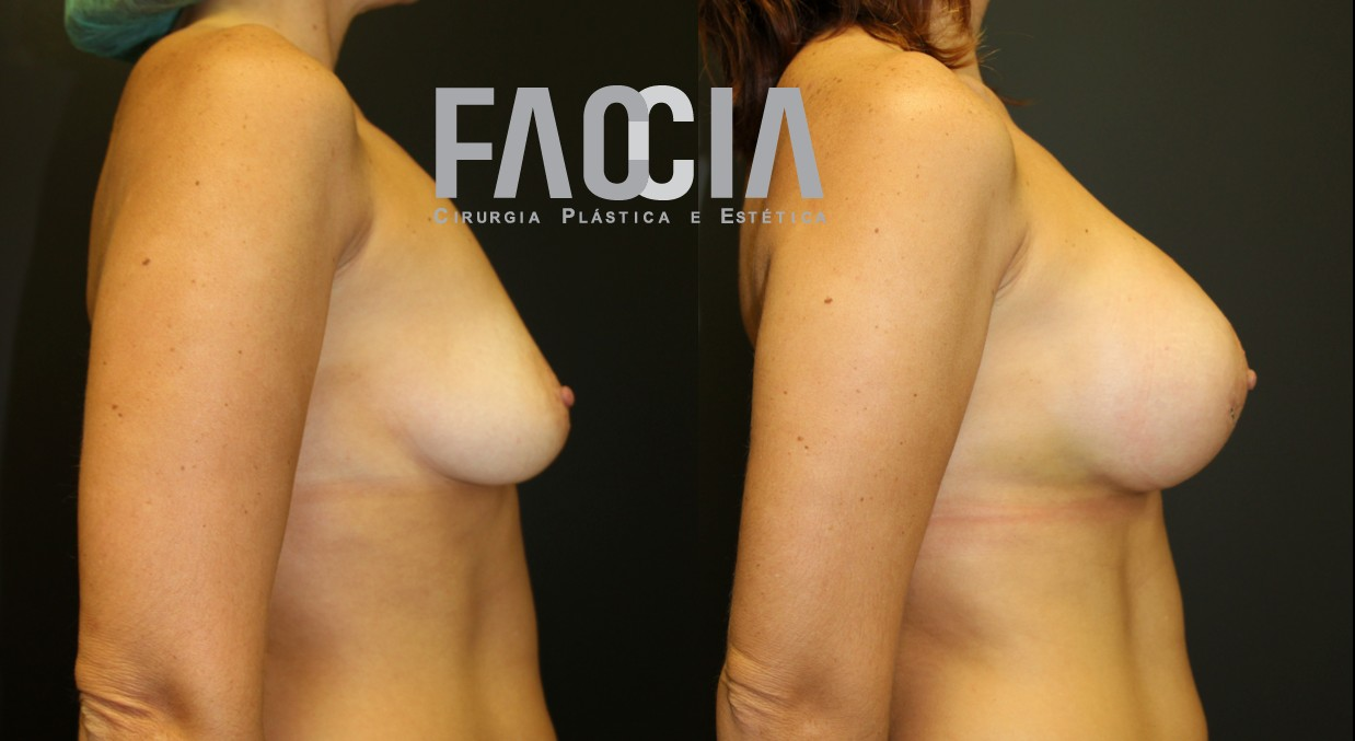 aumento mamario mulher