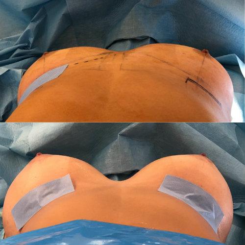 mamoplastia de aumento antes e depois